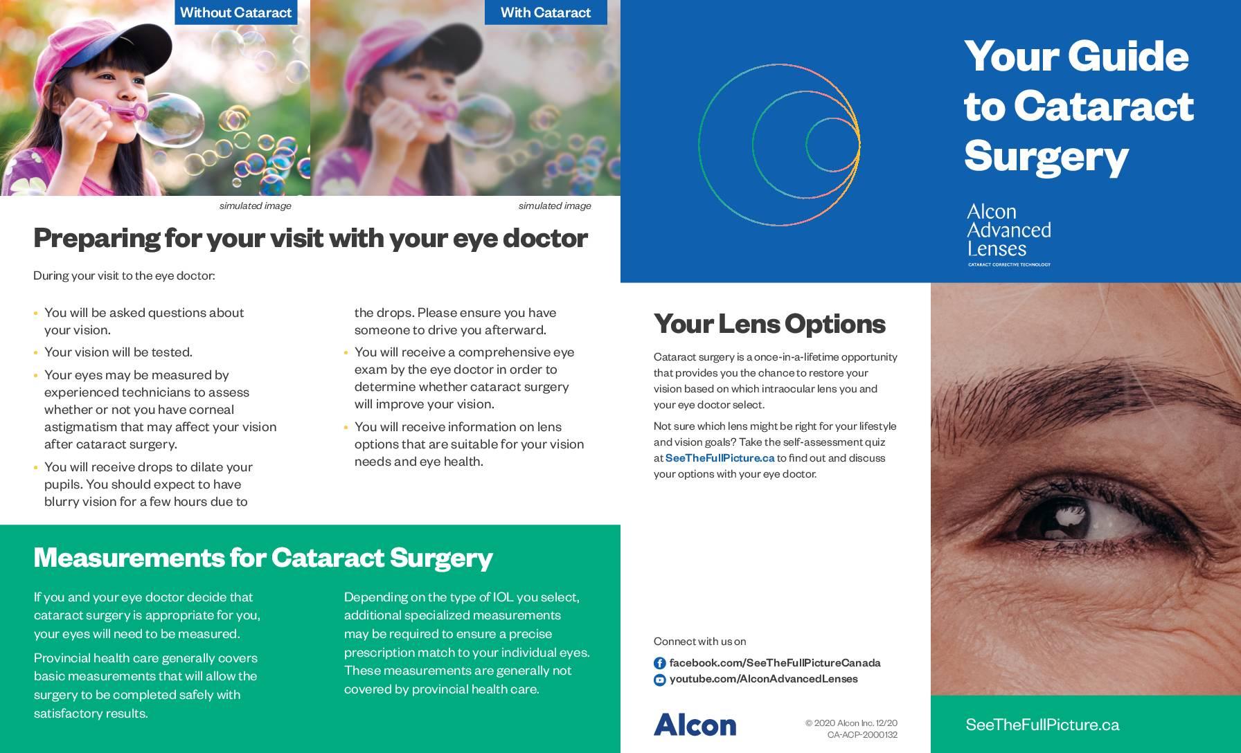 Cataracts Alcon Patient Brochure